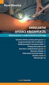 Ambulantní operace křečových žil