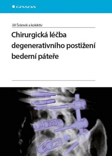 Chirurgická léčba degenerativního postižení bederní páteře - Šrámek Jiří a kolektiv - 17x24 cm, Sleva 13%